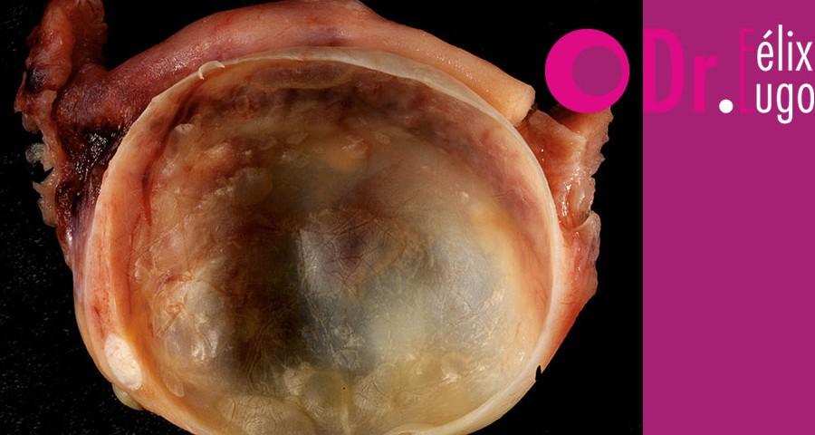 infección en los ovarios, enfermedad, ginecología, Dr. Félix Lugo,